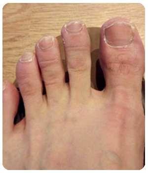 Благодаря мази Бакторецил ногти выздоровели.