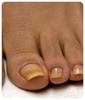Ногти на ногах до применения пенки Экзолит.