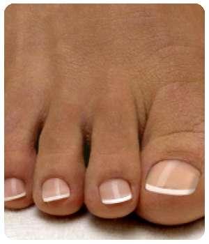 Благодаря средству Экзолит ногти пришли в норму.