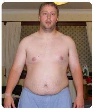 Лишний вес до применения капсул Keto Beauty.