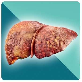 Печень до применения препарата Биогепам.