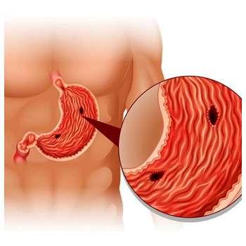 Болезнь желудка до применения лекарства Пилорис.