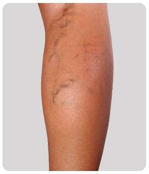 Вены на ноге до применения мази Делавен.