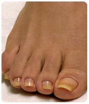 Состояние ногтей до применения мази Миковизин.