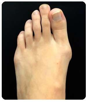 Большой палец ноги до применения мази Вальгукор.