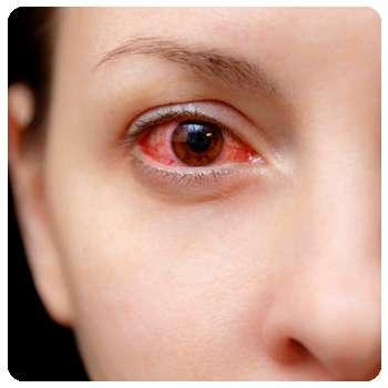Раздражение глазного яблока до применения капель Визоплекс.