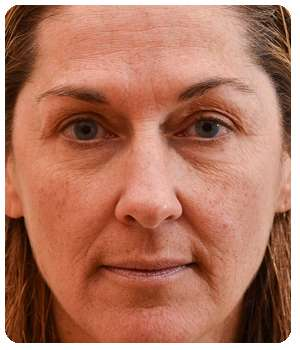 Состояние кожи лица до применения крема Caviarlift.