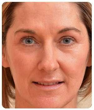Благодаря средству Caviarlift состояние кожи улучшилось.
