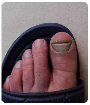 Ноготь до применения спрея Feet protect.