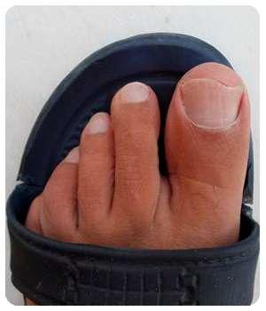 Благодаря препарату Feet protect ноготь восстановился.