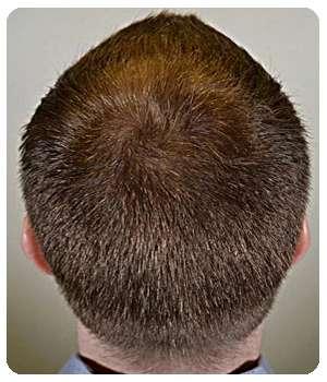Благодаря средству Level Hair выросли новые волосы.