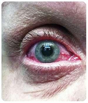 Состояние глаза до применения препарата Оптофрин.
