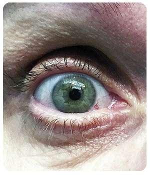 Благодаря средству Оптофрин глаз пришел в норму.