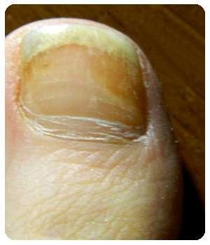 Грибок на ногте до применения мази Ремитазол.