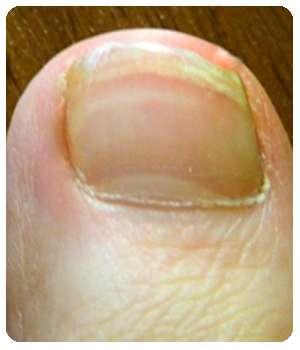 Благодаря крему Ремитазол ноготь восстановился.