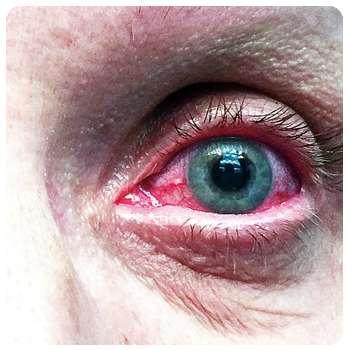 Воспаление глаза до применения препарата VisuTabs.