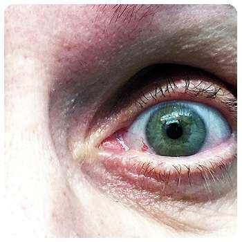 Благодаря лекарству VisuTabs глаз пришел в норму.