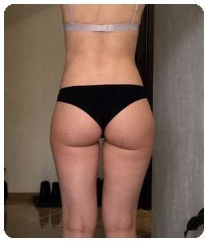 Благодаря препарату Кето Слим Форте вес пришел в норму.