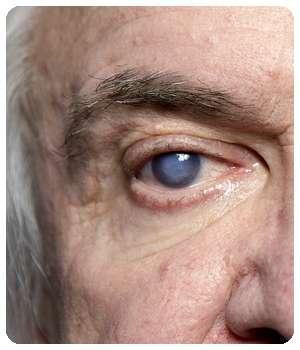 Проблема с глазом до применения лекарства Oculminex.