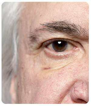 Благодаря препарату Oculminex глаз восстановился.