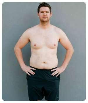 Лишний вес до применения средства Редакса.