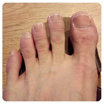 Благодаря средству Миконосил ногти пришли в норму.