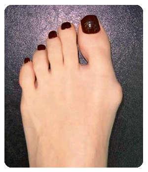 «Косточка» на пальце ноги до применения крема Вальгоцин.