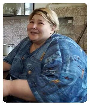 Ожирение до применения геля 2G Slim.