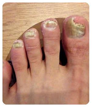 Состояние ногтей до применения геля Микодер.