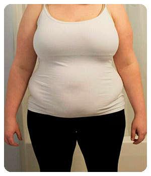 Лишний вес до применения эликсира Slimagic.