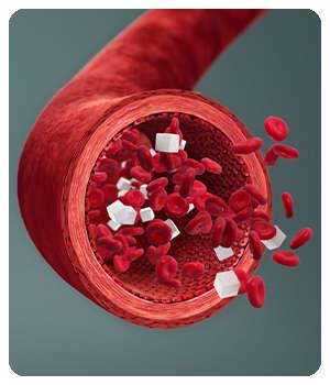 Сахар в крови до применения лекарства Инспилар.