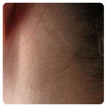 Благодаря крему Оптидермал кожа пришла в норму.