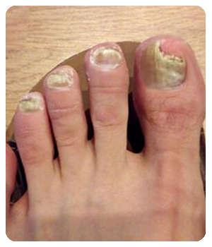 Грибок на ногтях до применения геля Дерматизон.