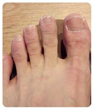 Благодаря крему Дерматизон ногти восстановились.