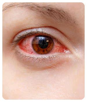 Проблемы с глазами до применения капель Оптивижн.
