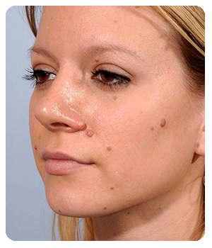 Лицо девушки до применения таблеток Папидермин.