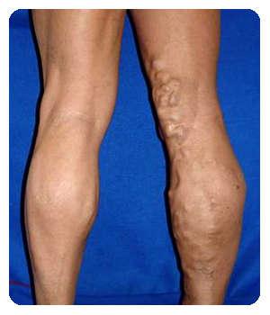 Вены на ногах до применения геля Флебозол.